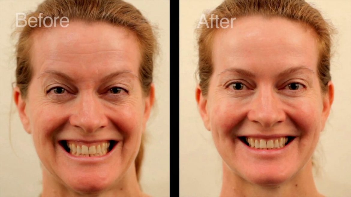 botox before and after picture